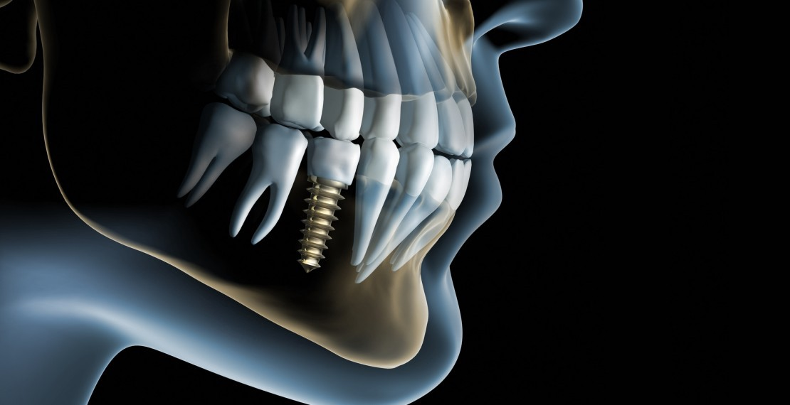 implanty stomatologiczne Wrocław